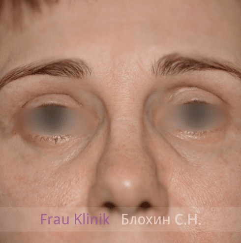 Блефаропластика 18