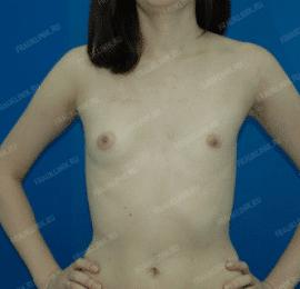 Коррекция ассиметрии груди 13