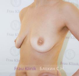 Коррекция ассиметрии груди 27