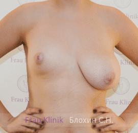 Коррекция ассиметрии груди 3