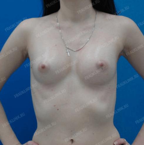Коррекция ассиметрии груди 14