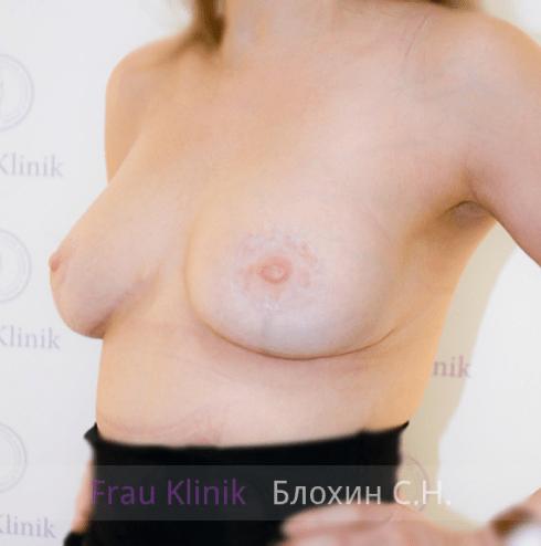 Коррекция ассиметрии груди 28