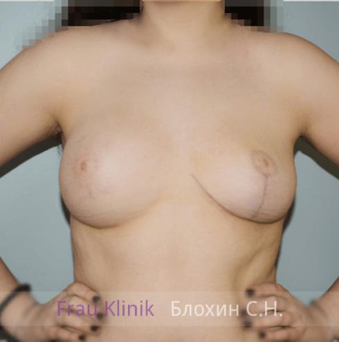 Коррекция ассиметрии груди 4