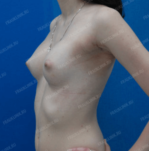Коррекция ассиметрии груди 16