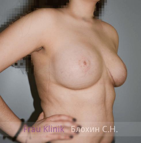 Коррекция ассиметрии груди 6