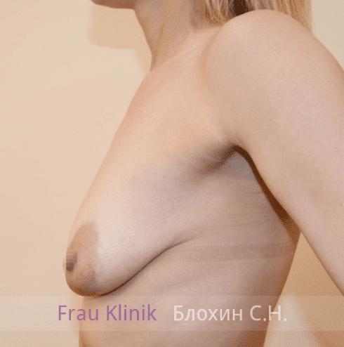Коррекция ассиметрии груди 35