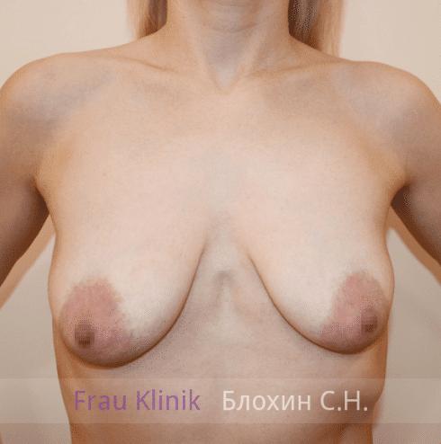 Коррекция ассиметрии груди 37