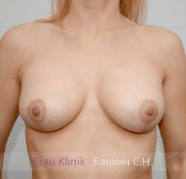 Коррекция ассиметрии груди 38