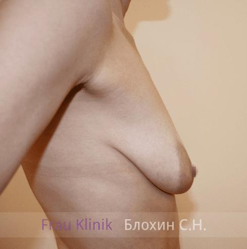 Коррекция ассиметрии груди 39