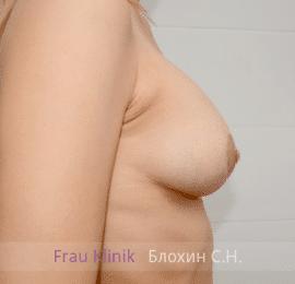 Коррекция ассиметрии груди 40