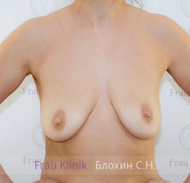 Коррекция ассиметрии груди 29
