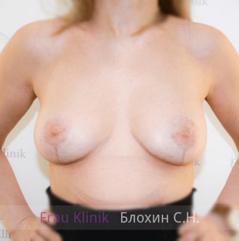 Коррекция ассиметрии груди 30