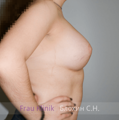 Коррекция ассиметрии груди 8