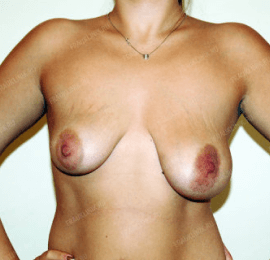 Коррекция ассиметрии груди 19
