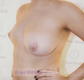 Коррекция ассиметрии груди 9