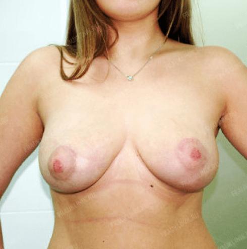 Коррекция ассиметрии груди 20