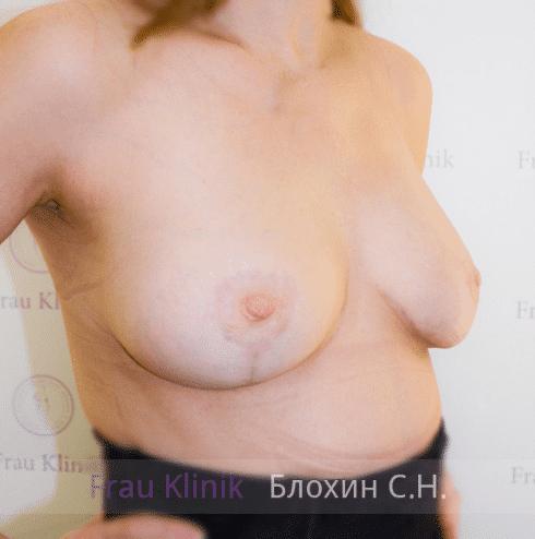 Коррекция ассиметрии груди 32