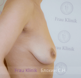 Коррекция ассиметрии груди 33