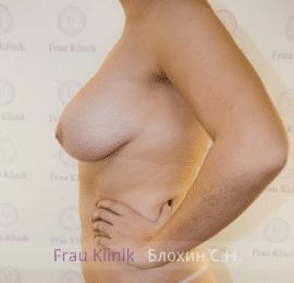 Коррекция ассиметрии груди 11