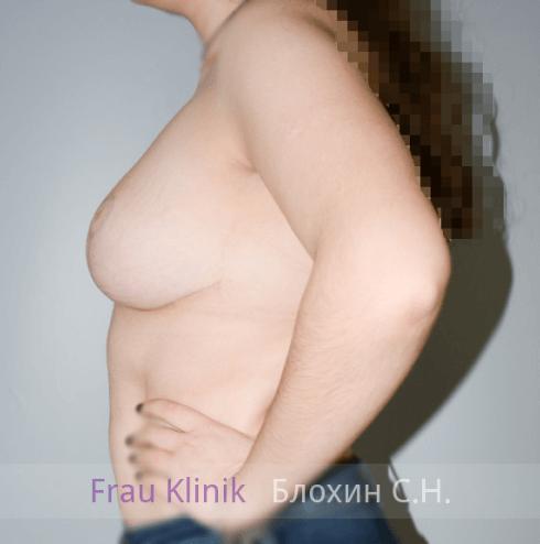 Коррекция ассиметрии груди 12