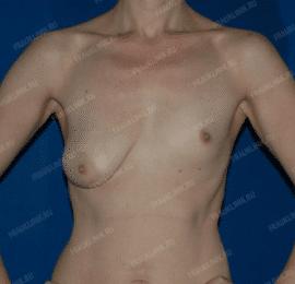 Коррекция ассиметрии груди 21