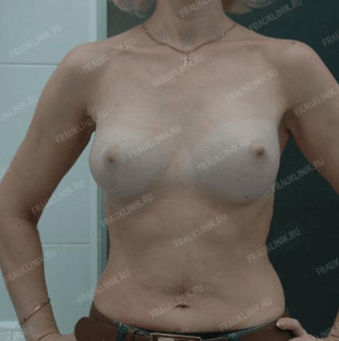 Коррекция ассиметрии груди 22
