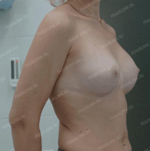 Коррекция ассиметрии груди 24