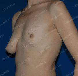 Коррекция ассиметрии груди 25