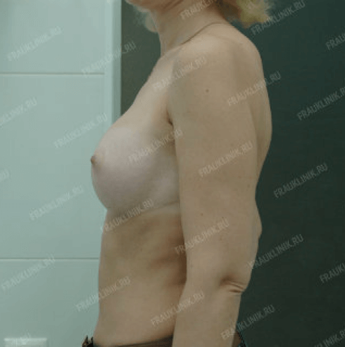 Коррекция ассиметрии груди 26